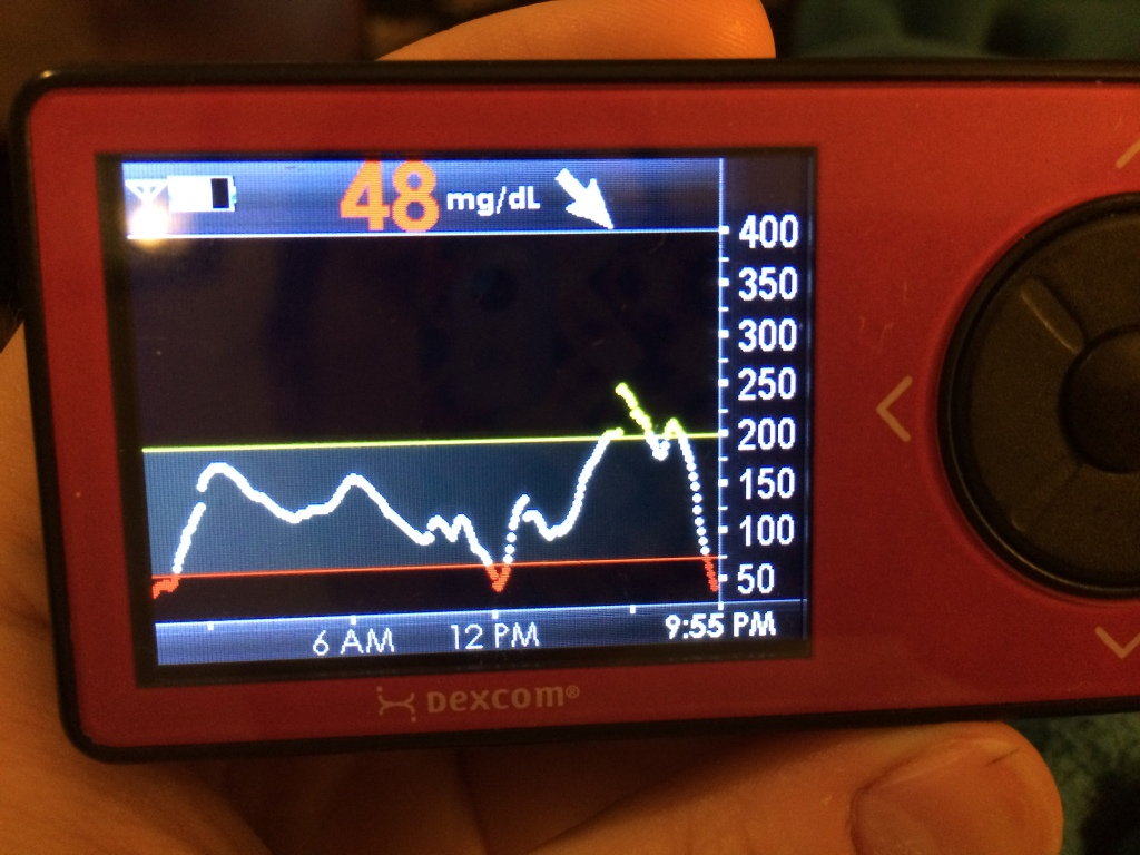 "Here's a moment when the Dexcom is hugely essential. The white line is when my blood sugar is ""in range"" (although I've set my range from 75 - 200). The yellow is above 200, the red is below 75. In this case, not only was I 48, but the Dexcom was telling me I was trending downwards (notice the arrow next to 48). It was time to treat."