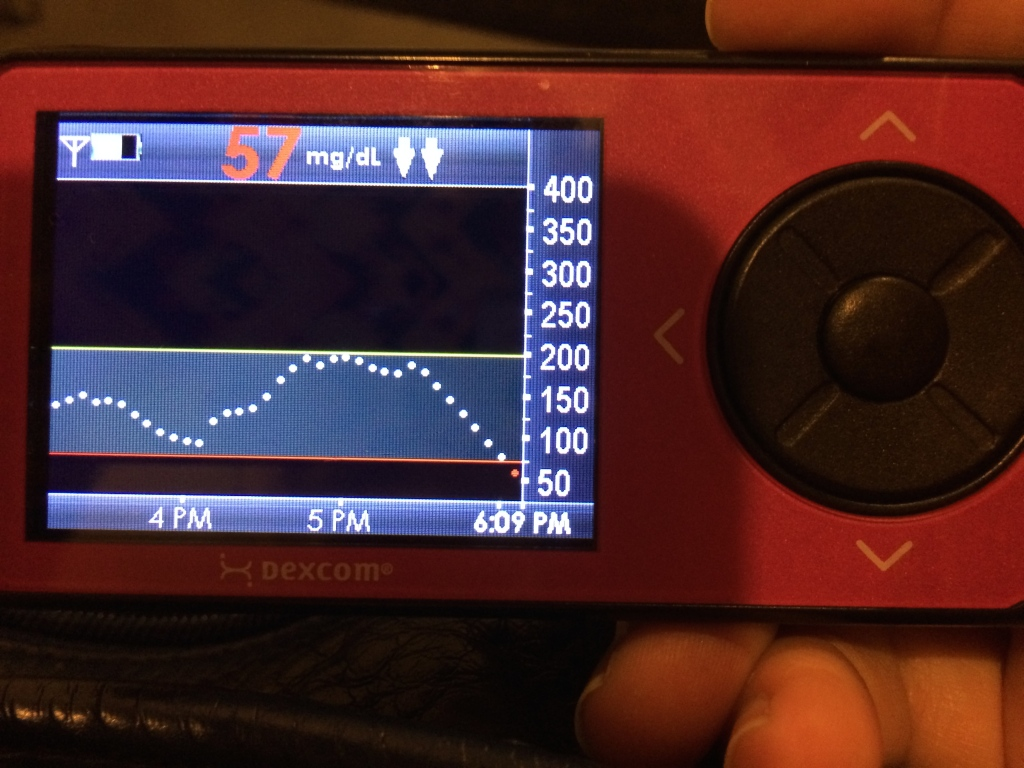 Here's another worrisome one -- notice the TWO STRAIGHT DOWN arrows next to the reading? It means your blood sugar is plummeting. Inject glucose ASAP.